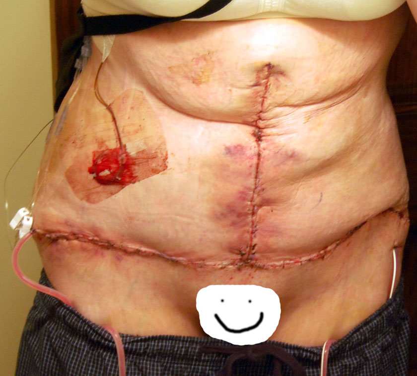 1 day after tummy tuck (skin removed: 4 pounds, 13 ounces)