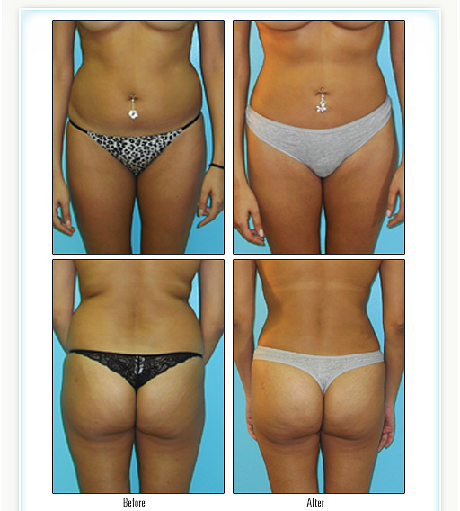 Liposuction- www.balbody.com