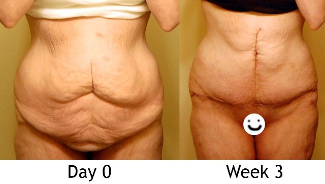 Day 0 & 3 Weeks (front, unclothed)