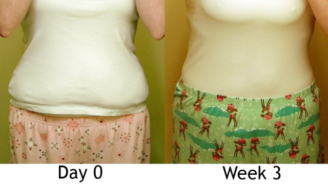 Day 0 & 3 Weeks (front, clothed)