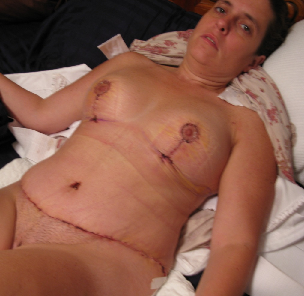 Day 8 post op
