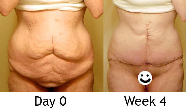 Day 0 & 4 Weeks (front, unclothed)