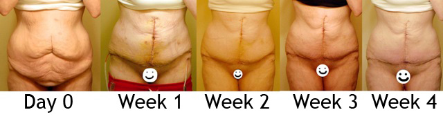 Day 0, Week 1, 2, 3 & 4 (front, unclothed)