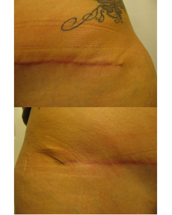 Incisions 10 wks
