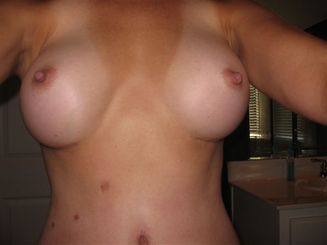 Does the rt. breast look like it is hanging lower?