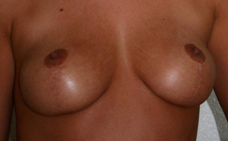 before implants 2yrs after lift