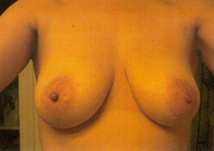 Before breast lift