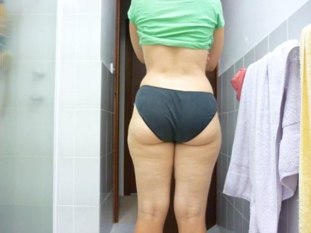 Before Lipo - Back