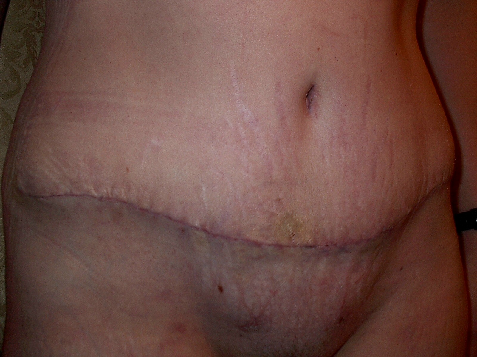 2 wks after surgery