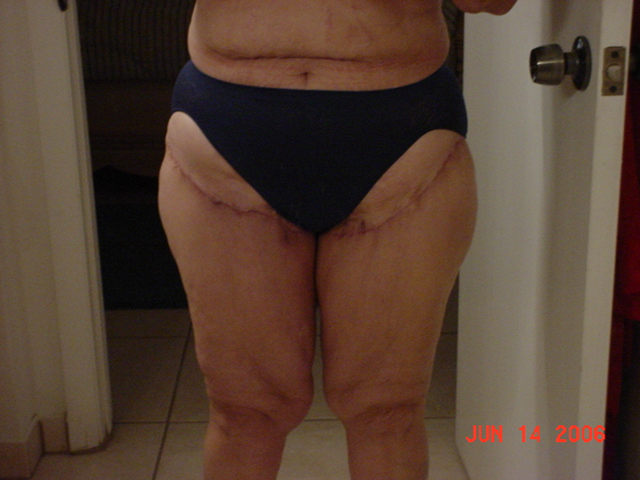 Thigh Lift Scars (New)