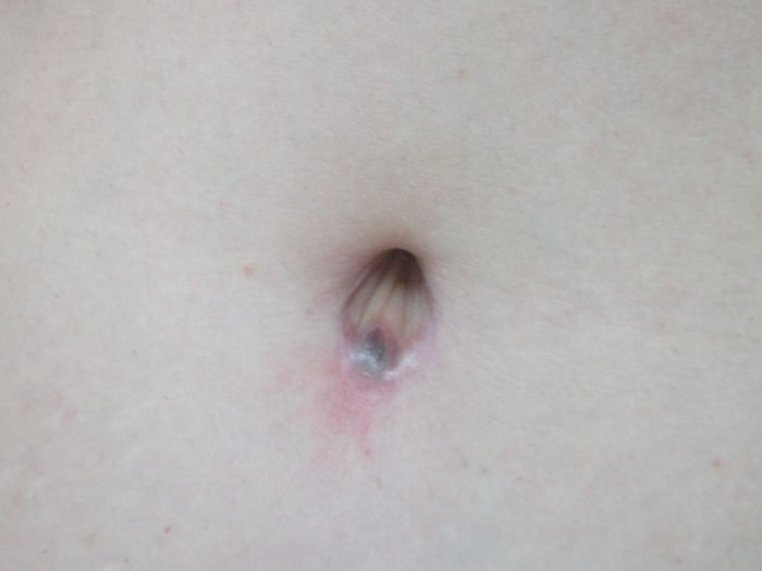 Post Op Vaginoplasty http://www.makemeheal.com/pictures/tummy-tuck/3-months-post-op-p136664