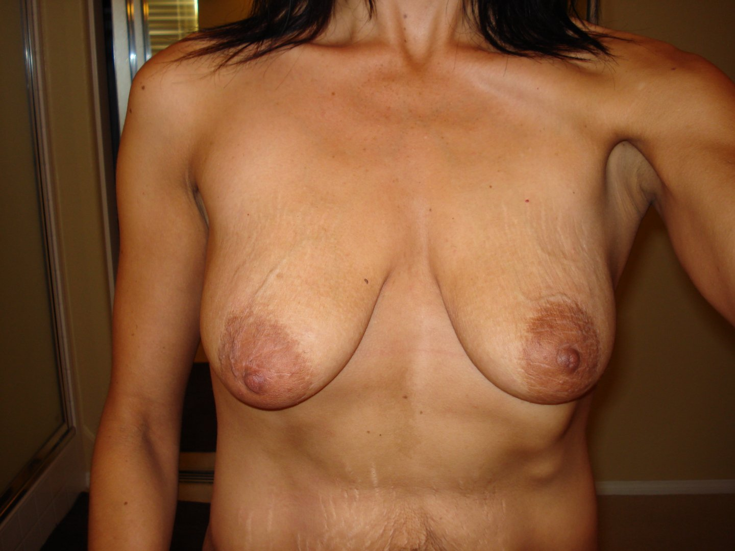 before breast front