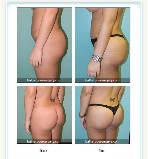 Moderate Brazilian buttlift and liposurction