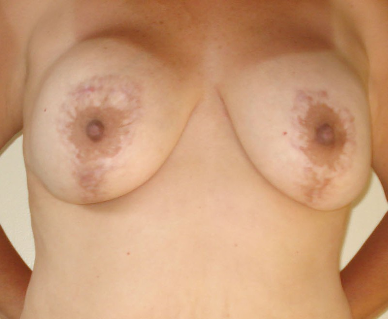 Old Breast Lift and Scars