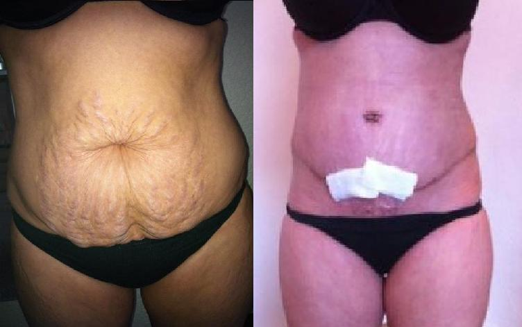 Before & After 3 Weeks PO, FTT w/ MR & Lipo
