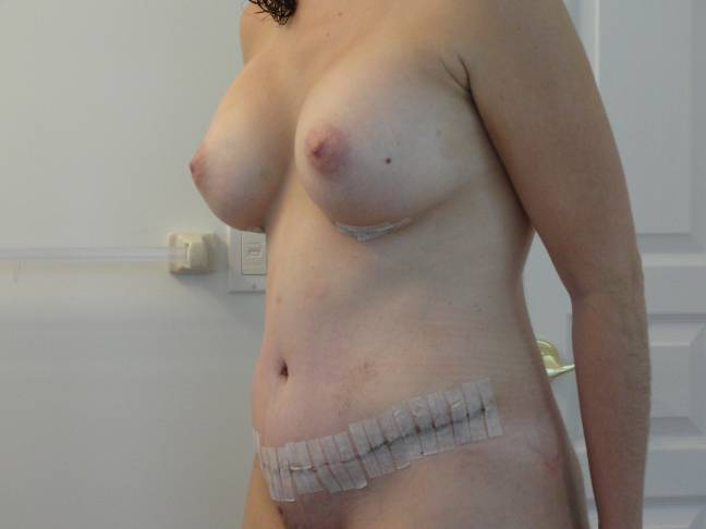 1 Week post op 2