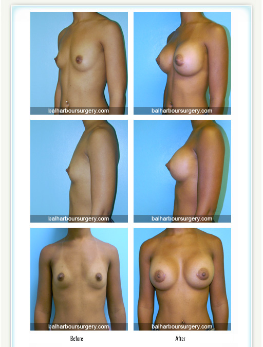Amazing Breast Augmentation before and after