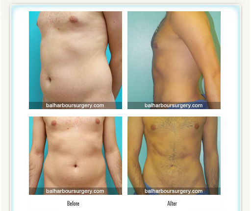 Amazing Male Liposuction Result