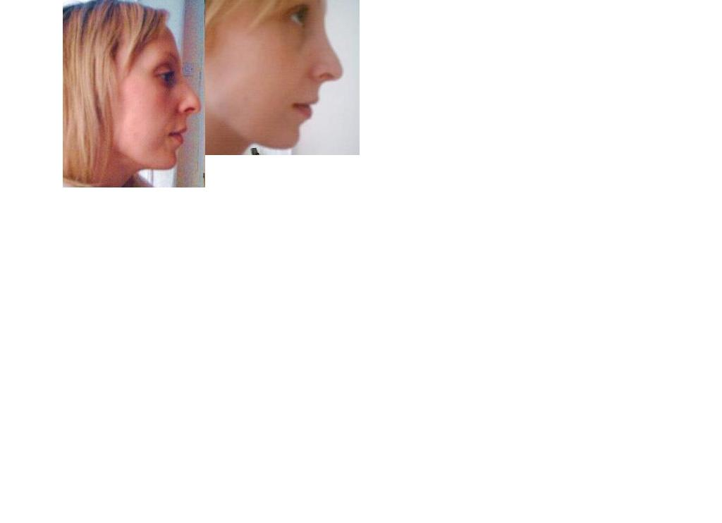 5 weeks - right profile (my worst side)