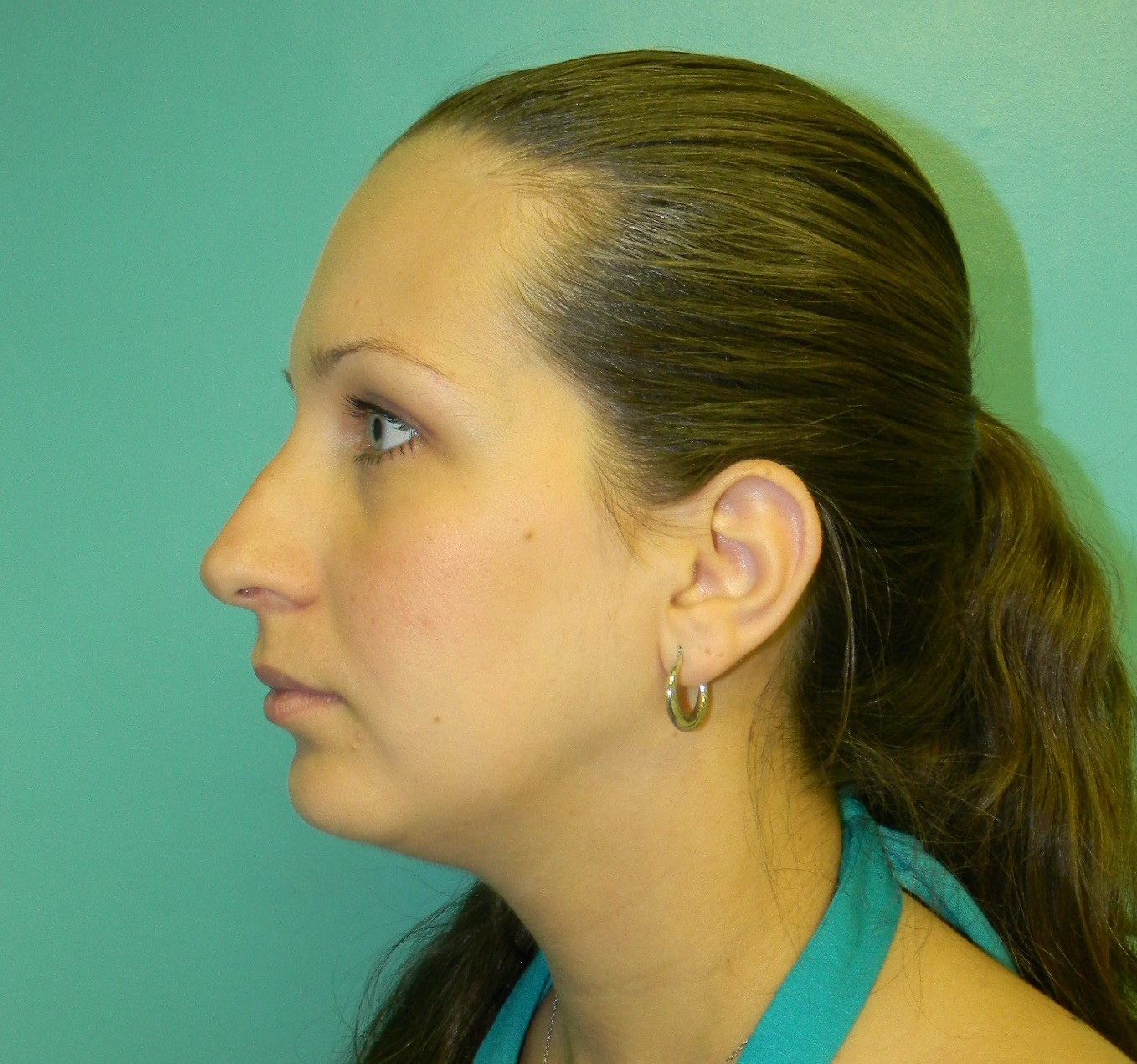 Nose Job- Rhinoplasty- Before