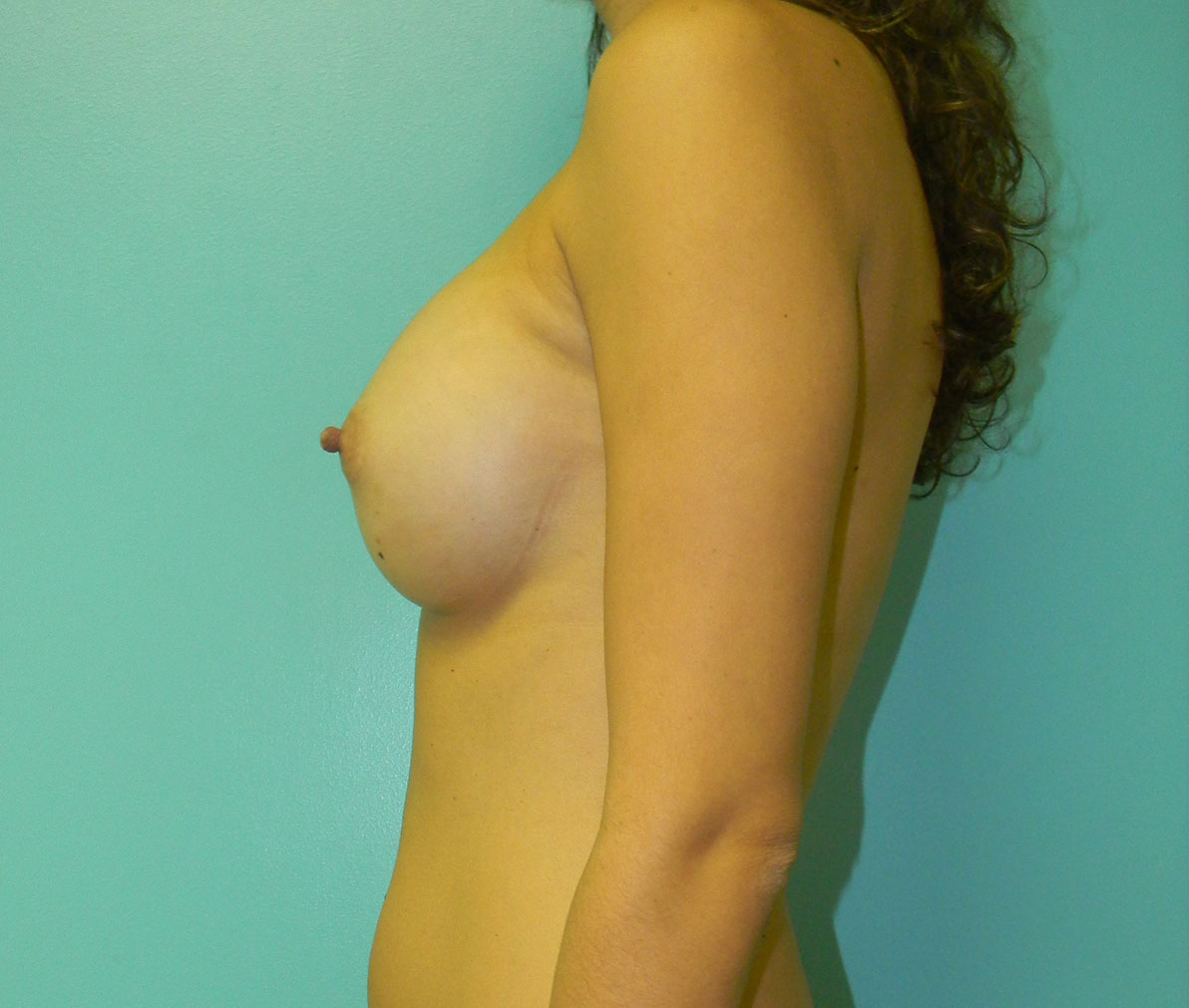 AFTER- Breast Augmentation by Dr. Salzhauer