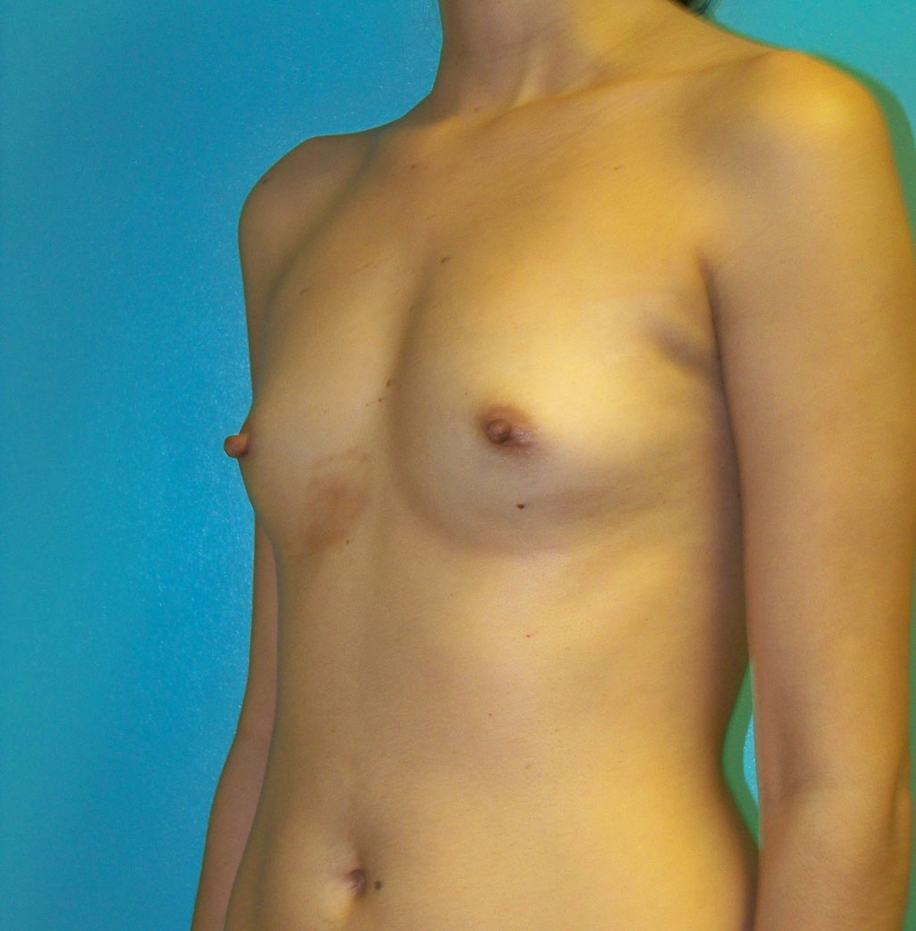 Before- Breast Augmentation by Dr. Salzhauer