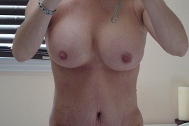 6 days post op breasts