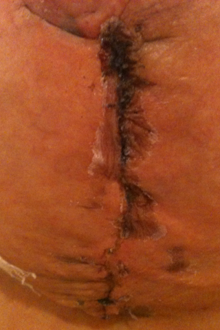 Incisions?