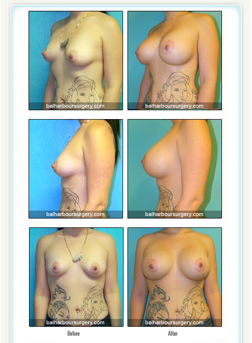 Breast augmentation with a little Lift