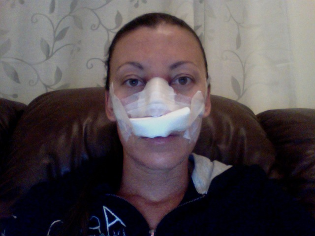 Home after Surgery pic1