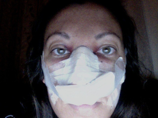 Post Op Vaginoplasty http://www.makemeheal.com/pictures/rhinoplasty/day-1-post-op-p149459