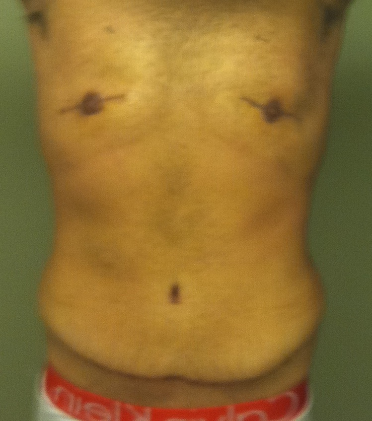 4.5 Months Post-TT, 9 Days Post Lipo and Chest Revision