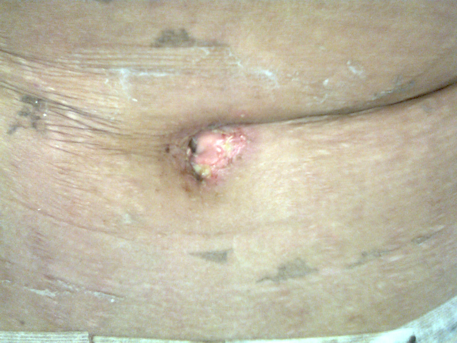 DAY 6 AFTER GOING BACK TO A&E BELLY BUTTON INFECTION
