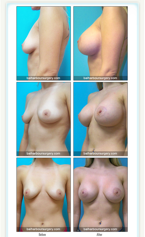 Breast Augmentation- Small D