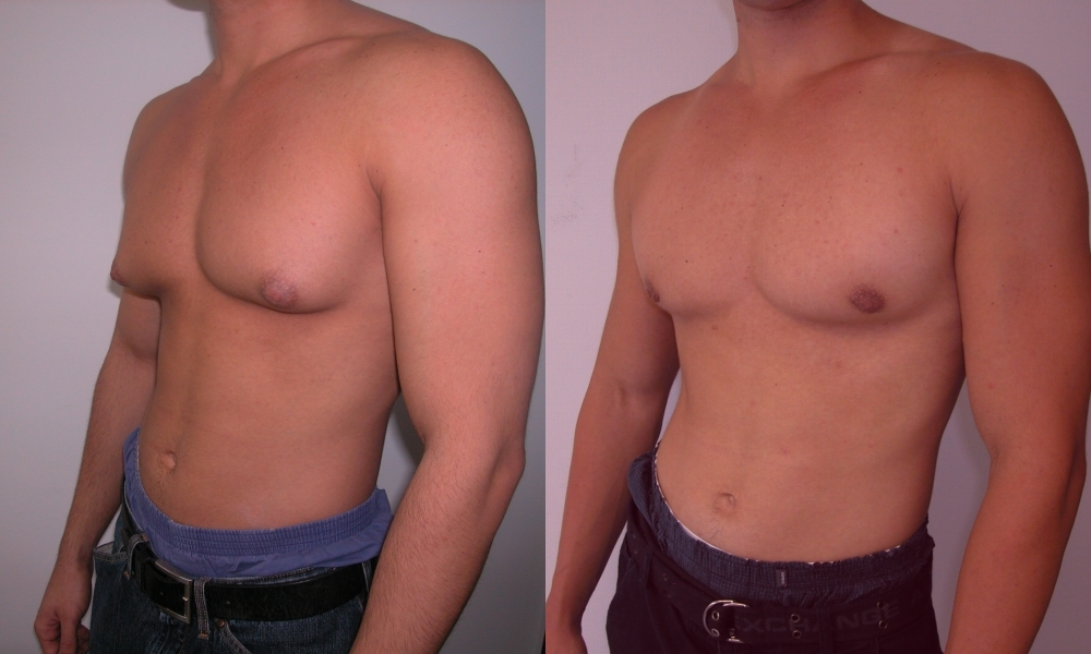 Gynecomastia New York