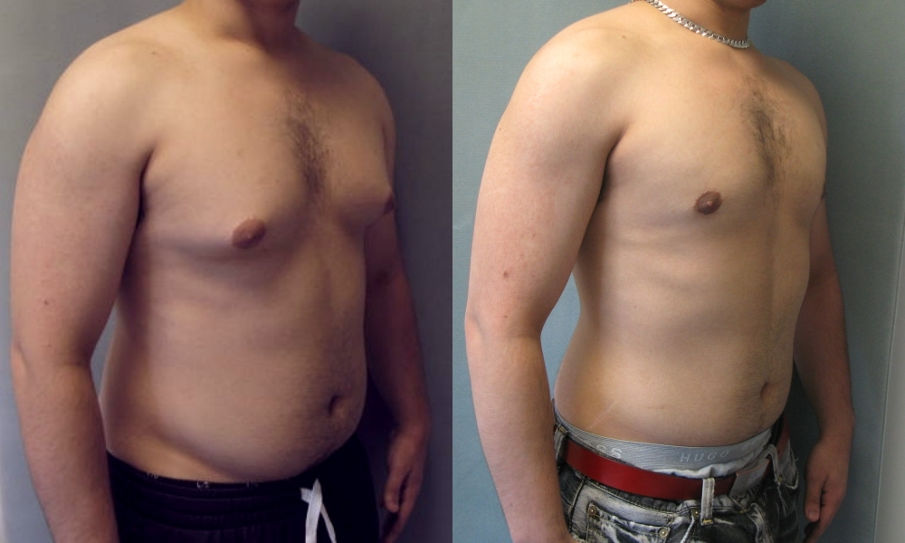 Male Breast Reduction Surgery New Jersey NJ