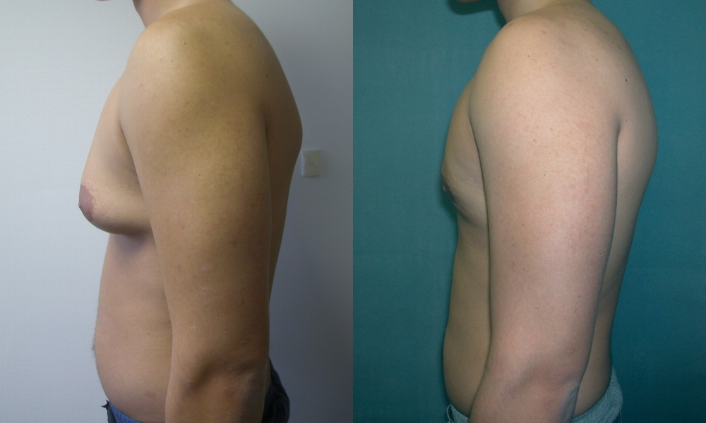 Gynecomastia,Male Breast Reduction Surgery