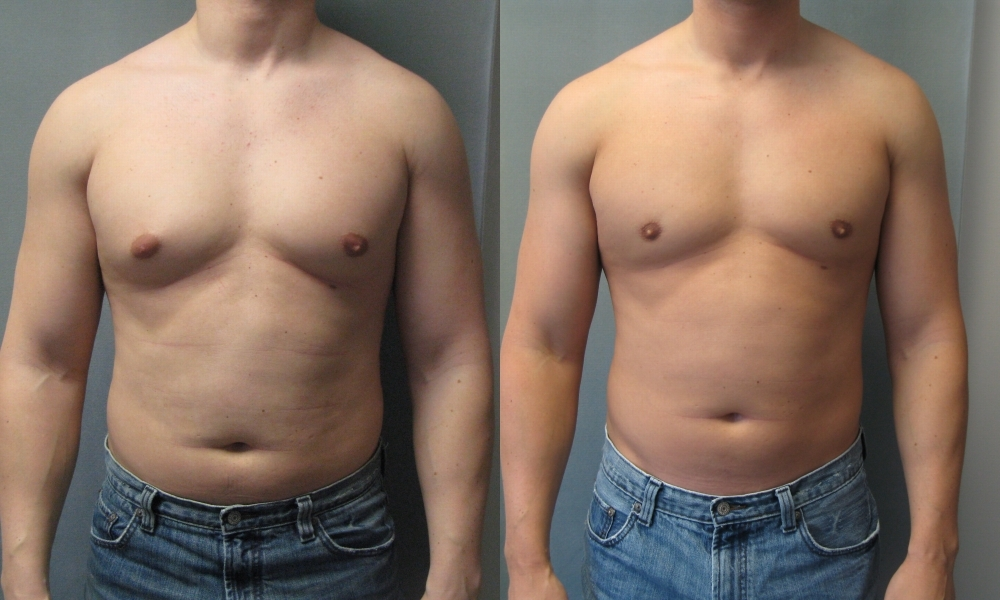 Gynecomastia-Male Breast Reduction-Dr Blau