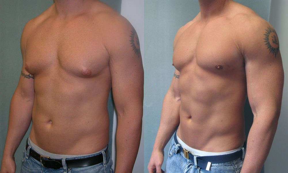 Male Breast Reduction-Body Builder-Dr Blau