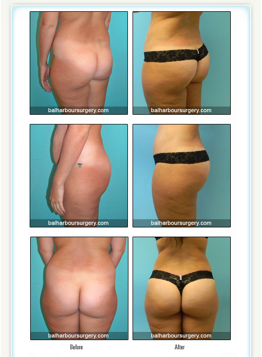 Buttocks Augmentation- Fat Transfer