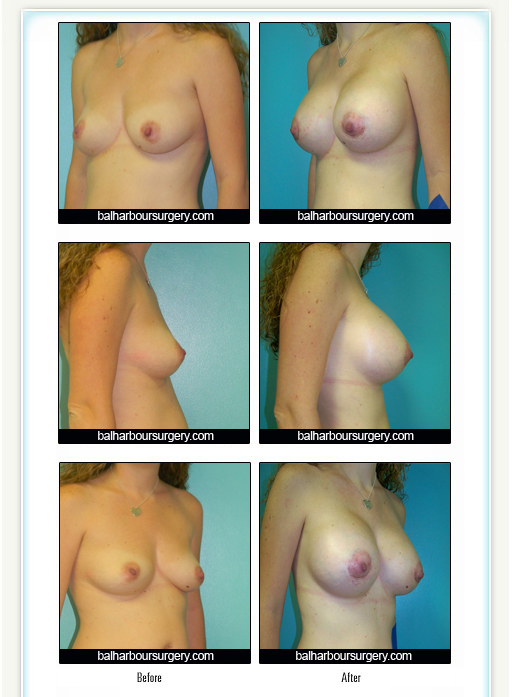 Breast Augmentation- From A to C