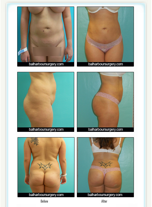 Liposuction- New Post- Baby Body