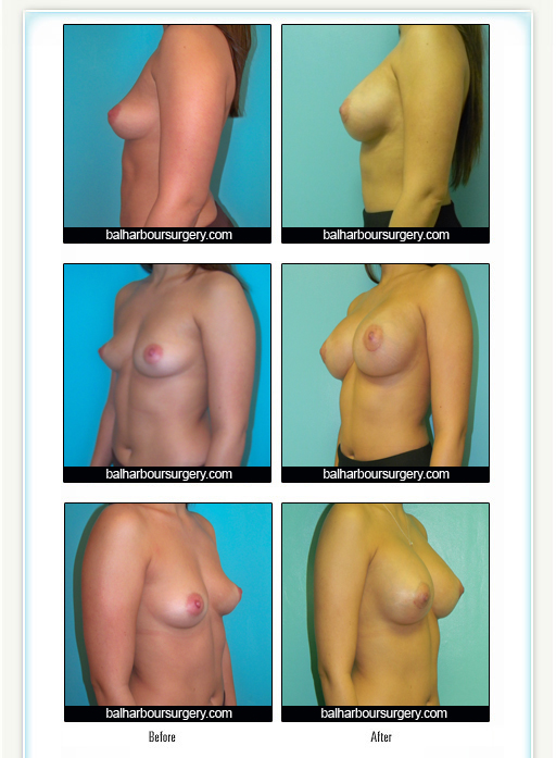 Breast Augmentation- Silicone Implants
