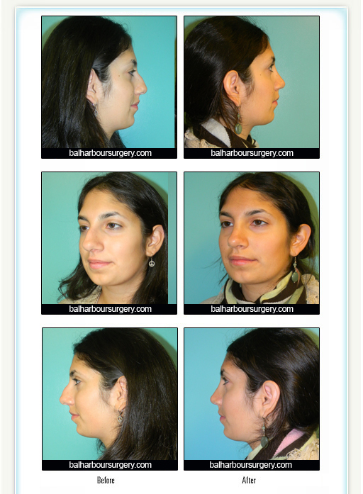 Nose Job- Rhinoplasty Before and After