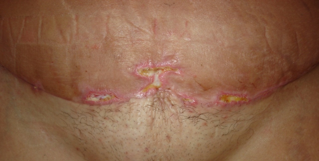 incision pics 26days po