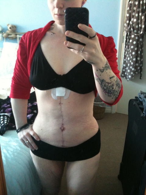 SIX WEEKS POST OP.