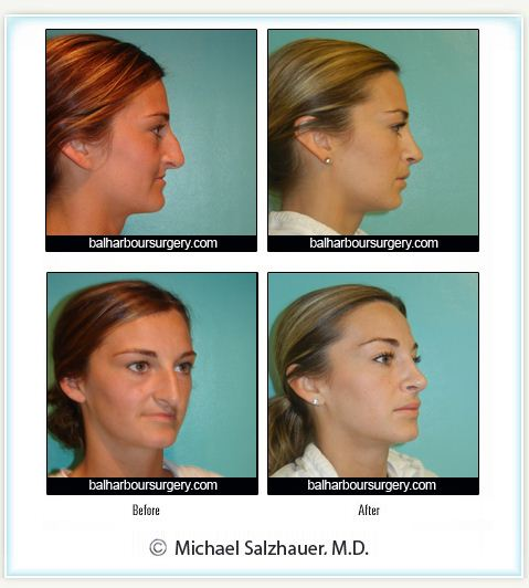 Amazing Nose Job- Before and After