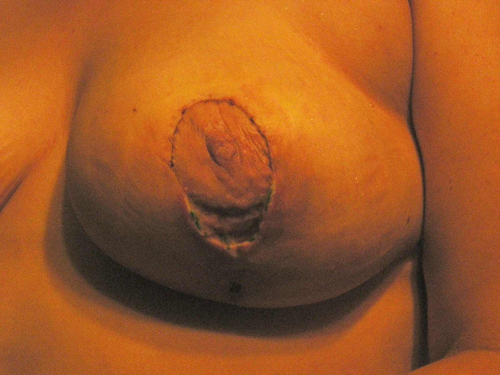 left breast 18 days post op with the big hole