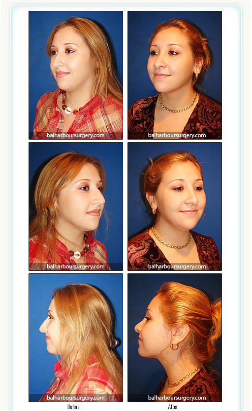 Rhinoplasty by Bal Harbour Plastic Surgery