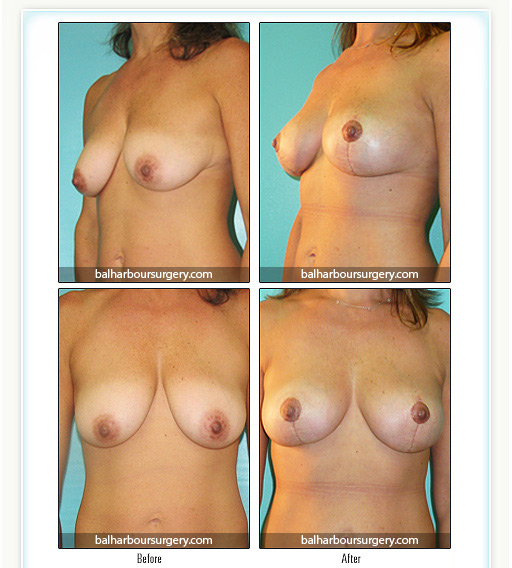Breast Lift- Before and After